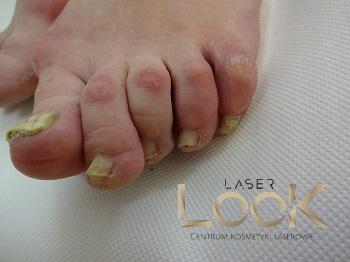 laserowe leczenie grzybicy paznokci Lublin